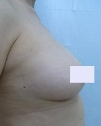 新宿ビューティークリニックの豊胸手術(胸の整形)の症例写真[アフター]