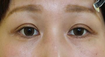 千葉中央美容形成クリニックの目・二重の整形の症例写真[アフター]