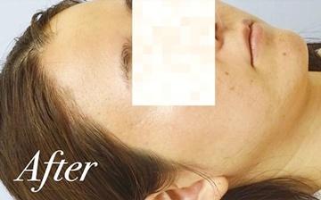 表参道スキンクリニックのニキビ治療・ニキビ跡の治療の症例写真[アフター]