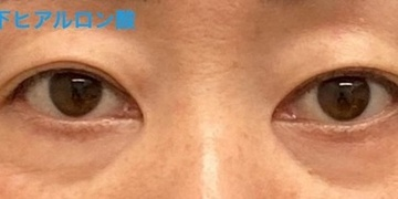 ロレシー美容クリニック 心斎橋駅前院の目・二重整形の症例写真[ビフォー]