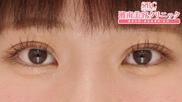 湘南美容クリニック東京蒲田院の目・二重の整形の症例写真[アフター]