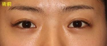 埋没重瞼と目頭切開の修正 術後1か月の経過の症例写真[ビフォー]