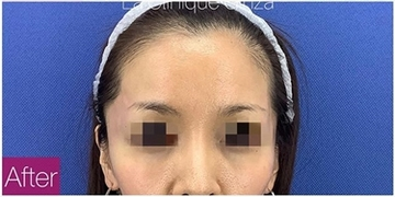 La Clinique Ginza(ラ クリニック銀座)の輪郭・顎の整形の症例写真[アフター]