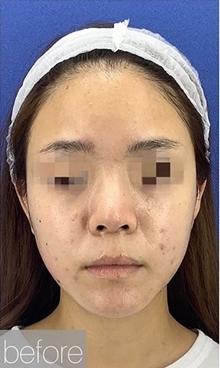 La Clinique Ginza(ラ クリニック銀座)の輪郭・顎の整形の症例写真[ビフォー]