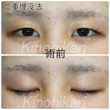 樹のひかり 形成外科・皮ふ科の目・二重整形の症例写真