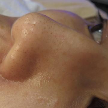 東京八丁堀皮膚科・形成外科のシミ治療(シミ取り)・肝斑・毛穴治療の症例写真[ビフォー]