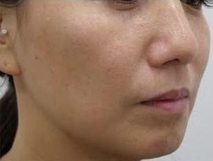 静岡美容外科橋本クリニックのシミ治療(シミ取り)・肝斑・毛穴治療の症例写真[アフター]