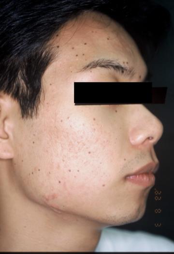 熊本かよこクリニックのニキビ治療・ニキビ跡の治療の症例写真[アフター]