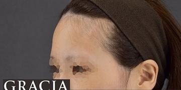 GRACIA clinic(グラシアクリニック)の輪郭・顎の整形の症例写真[ビフォー]
