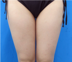 ガーデンクリニックの脂肪吸引の症例写真[ビフォー]