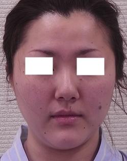 新宿ビューティークリニックの脂肪吸引の症例写真[ビフォー]