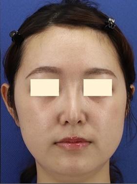 プロテーゼ・鼻先の形成(肋軟骨) 術後3ヶ月の症例写真[アフター]