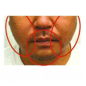 サクラアズクリニック・グループの顔の整形(輪郭・顎の整形)の症例写真[アフター]