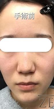 鼻尖形成のモニター様の症例写真[ビフォー]