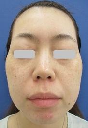 梅田フェミークリニックのシミ治療(シミ取り)・肝斑・毛穴治療の症例写真[アフター]