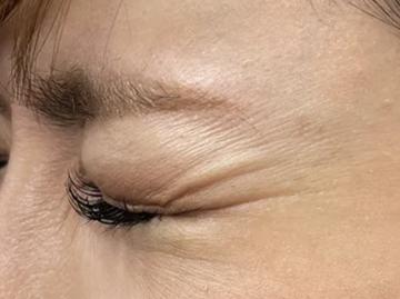 あやべクリニックの顔のしわ・たるみの整形の症例写真[ビフォー]