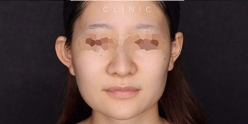 SELECT CLINIC(セレクトクリニック)の顔の整形(輪郭・顎の整形)の症例写真[アフター]