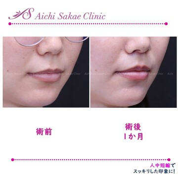 あいち栄クリニックの口元・唇の整形の症例写真