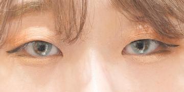 東京イセアクリニック 渋谷院の目・二重整形の症例写真[ビフォー]