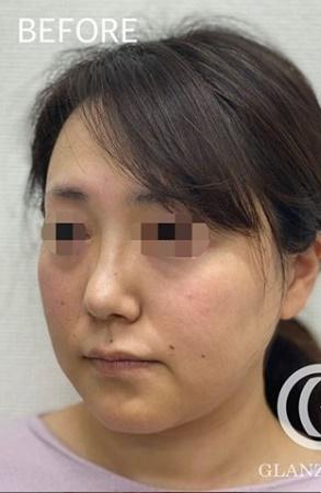 GLANZ CLINIC (グランツクリニック)のシワ・たるみ(照射系リフトアップ治療)の症例写真[ビフォー]