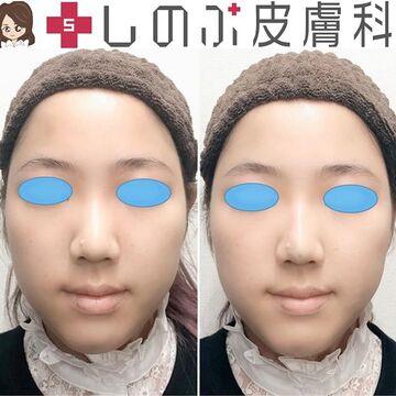 しのぶ皮膚科の鼻の整形の症例写真