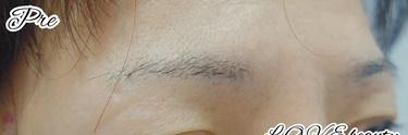 4D眉アートメイクの症例写真
