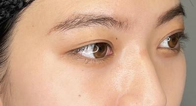 長谷部医師による目の下のふくらみ取りスペシャル(クマ取り)の症例写真[アフター]
