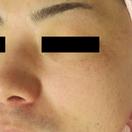 肝斑治療:レーザートーニング、肝斑内服、医療用オバジなど[アフター]