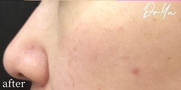 ルラ美容クリニックのシミ取り・肝斑・毛穴治療の症例写真[アフター]