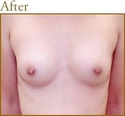 再生医療による幹細胞脂肪注入法豊胸術の症例写真[アフター]