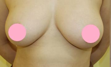 千葉中央美容形成クリニックの豊胸手術(胸の整形)の症例写真[ビフォー]
