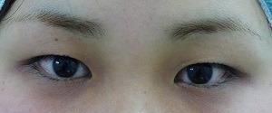 スキンコスメクリニックグループの目・二重の整形の症例写真[ビフォー]