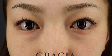 GRACIA clinic(グラシアクリニック)の目元整形・クマ治療の症例写真[ビフォー]