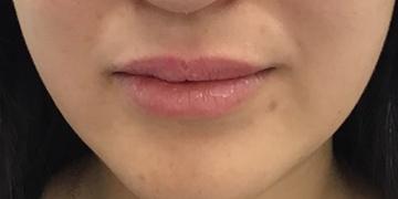 東郷美容形成外科 福岡の口もと、唇の整形の症例写真[アフター]