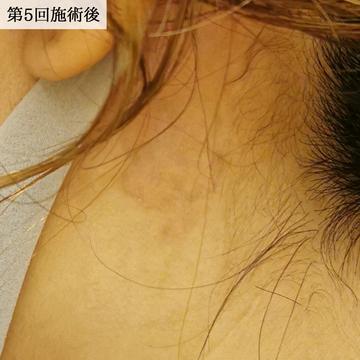エースクリニックのタトゥー除去の症例写真[アフター]