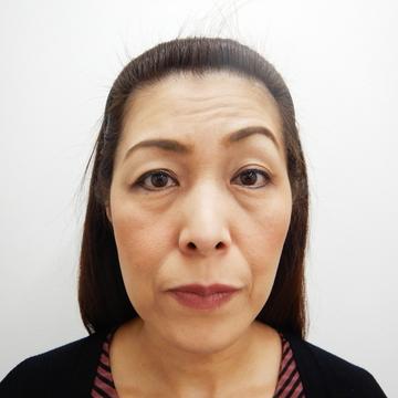 水の森美容外科の顔のしわ・たるみの整形(リフトアップ手術)の症例写真[ビフォー]