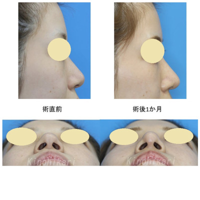 鼻尖縮小(クローズ法)耳介軟骨移植 術前・術後の症例写真