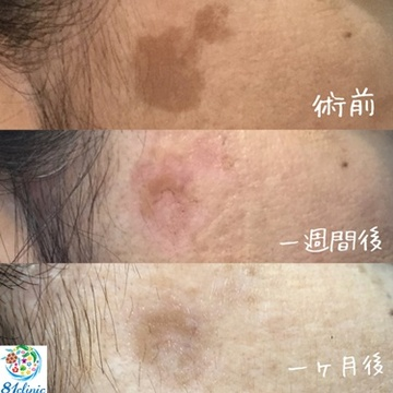 81clinicのシミ治療(シミ取り)・肝斑・毛穴治療の症例写真