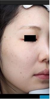La Clinique Ginza(ラ クリニック銀座)のシミ治療(シミ取り)・肝斑・毛穴治療の症例写真[アフター]