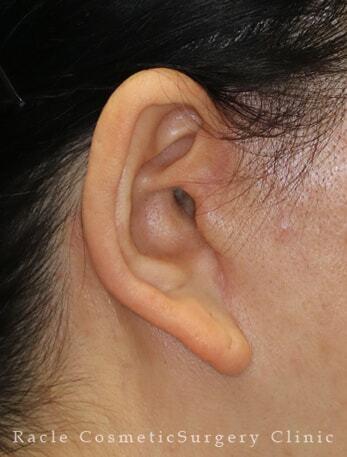 新宿ラクル美容外科クリニックの顔のしわ・たるみの整形の症例写真[アフター]