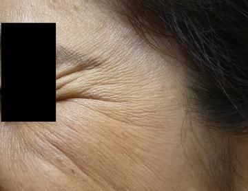 さやか美容クリニック・町田の目元整形・クマ治療の症例写真[ビフォー]