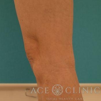 クールスカルプティングによる膝上の部分痩せの症例写真[ビフォー]