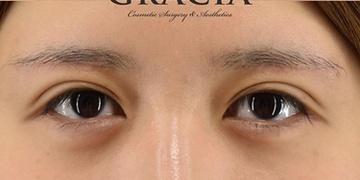 GRACIA clinic(グラシアクリニック)の目・二重の整形の症例写真[アフター]