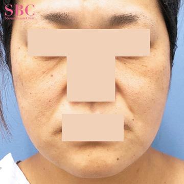 湘南美容クリニック 高松院の顔のしわ・たるみの整形(リフトアップ手術)の症例写真[ビフォー]