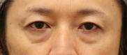 湘南美容クリニック町田院の目元の整形、くま治療の症例写真[ビフォー]