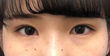 湘南美容クリニック新橋銀座口院の目・二重の整形の症例写真[アフター]