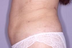 白山クリニックの脂肪吸引の症例写真[ビフォー]