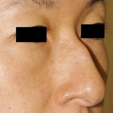 タウン形成外科クリニックの鼻の整形の症例写真[ビフォー]