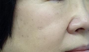 東京中央美容外科・美容皮膚科のホクロ除去・あざ治療・イボ治療の症例写真[アフター]