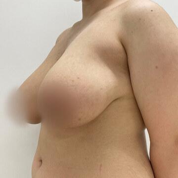 東京美容外科 沖縄院の豊胸・胸の整形の症例写真[ビフォー]
